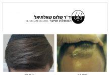 """חושב על השתלת שיער? ד""""ר שלום שאלתיאל מסביר מדוע כדאי לבצע השתלה רק בישראל"""